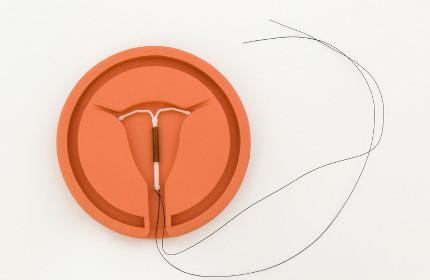spirale anticoncezionale